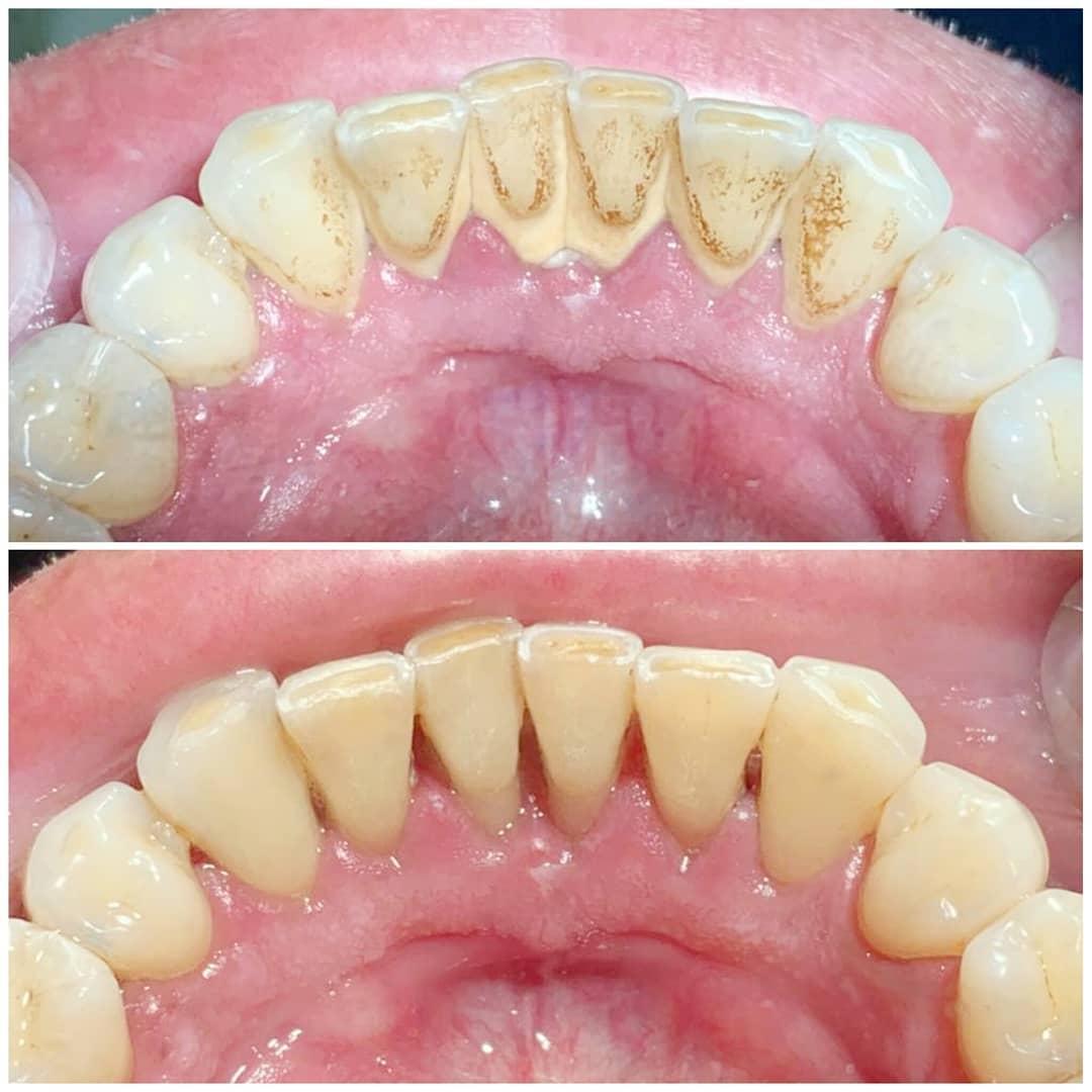 картинки зубного налета